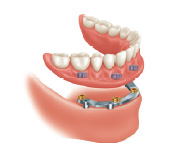 Mini dental implant with reinforcement bar and retained lower denture