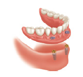 mini dental implant retained dentures